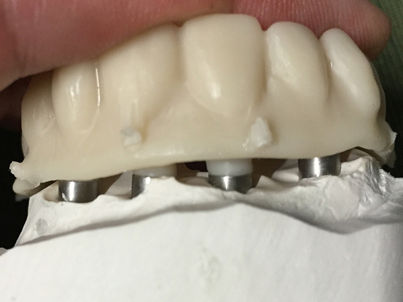 5 Axis Implant PMMA Bridge