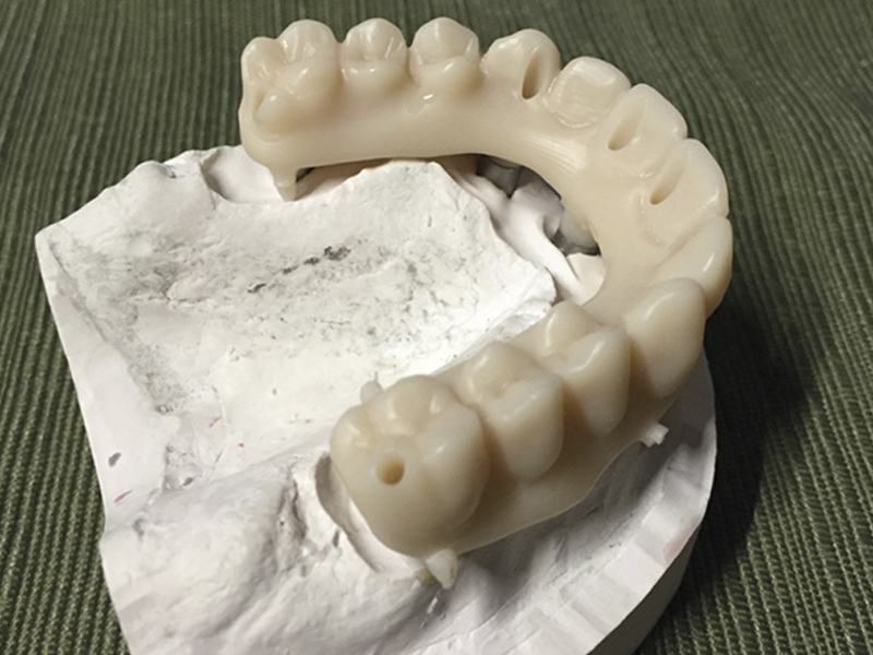 5 Axis Dental Implant
